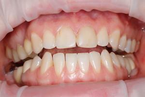 Художественная реставрация и чистка зубов, фото до