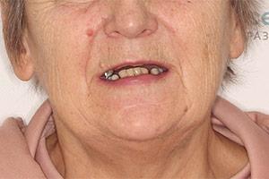 Отсутствие зубов и сломанный зубной мост ДО лечения