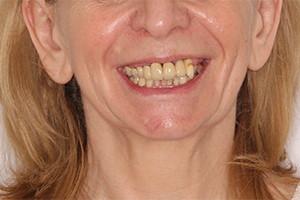 Восстановление зубов обеих челюстей