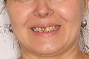 Восстановление всех зубов пациента