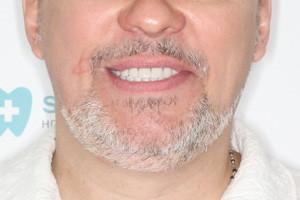 Протезирование All-on-4 на обе челюсти с постоянными протезами