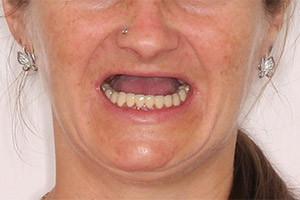 Отсутствуют зубы на верхней челюсти