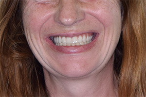 Полное восстановление верхней челюсти