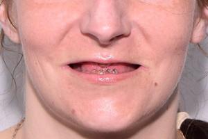 BASAL COMPLEX на обе челюсти - до
