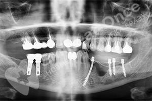 Восстановление зубов после зубного моста