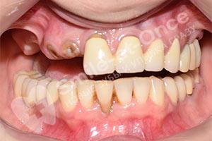 Разрушение зубов верхней челюсти и имплантация