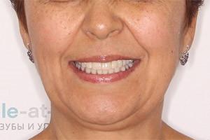 Восстановление разрушенных зубов