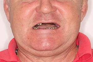 Применение технологии Basal Complex для верхней челюсти