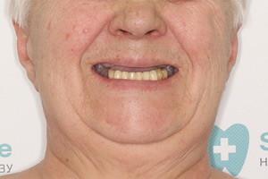 Имплантация Basal Complex FULL и All-on-4
