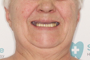 Имплантация Basal Complex и All-on-4 - до