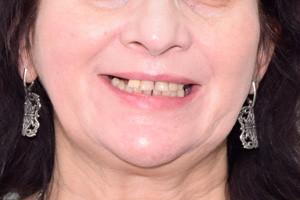 Все-на-4 с постоянным протезом на верхнюю челюсть, фото до