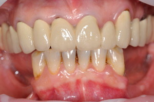 Протезирование All-on-4 с адаптационным протезом для верхней и нижней челюсти