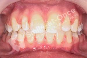 Не прорезались зубы