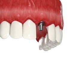 Отторжение зубного импаланта