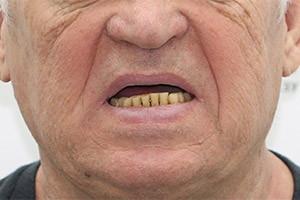 Восстановление зубов верхней челюсти