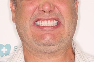 Комплексная базальная имплантация 2 челюсти