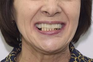 Протокол All-on-4 для восстановления нижней челюсти