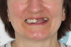 All-on-4 с адаптационным протезом на обе челюсти - до