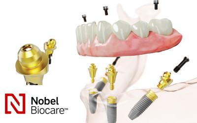 Все на 4 имплантах Nobel  с немедленной нагрузкой