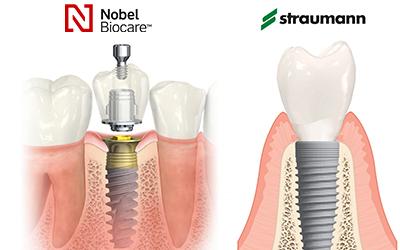 Имплант Premium с коронкой из диоксид циркония