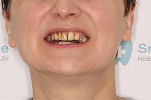 Воссстановление разрушенных зубов - однофазная имплантация
