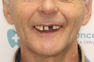 Имплантация зубов при атрофии костной ткани