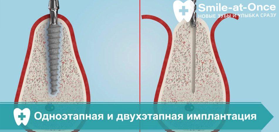 Видео об одноэтапной и двухэтапной имплантации - сравнение
