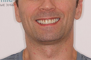 Однофазная имплантация верхней челюсти с протезом из керамокомпозита