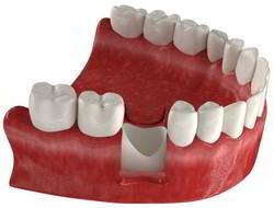 Отсутствие зуба с корнем