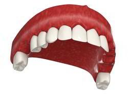 Отсутствуют жевательные зубы