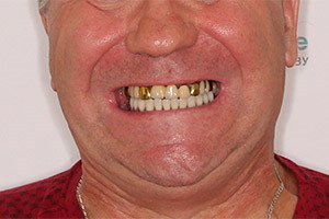 Замена зубных мостов нижней челюсти