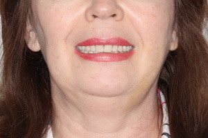 Basal Complex с адаптационным протезом на обе челюсти - до