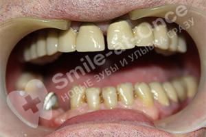 Комплексное восстановление зубов верхней челюсти и жевательных нижней