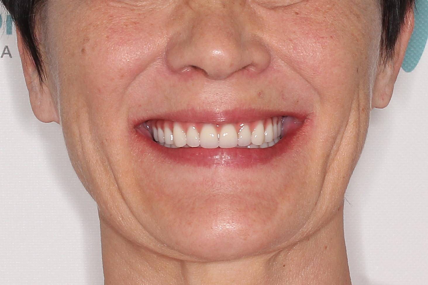 Basal Complex на обе челюсти с керамокомпозитными протезами через 2 года, фото до