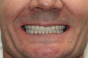 Постоянное протезирование после комплексной имплантации зубов