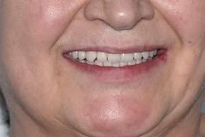 Перепротезирование после имплантации всех зубов, фото до