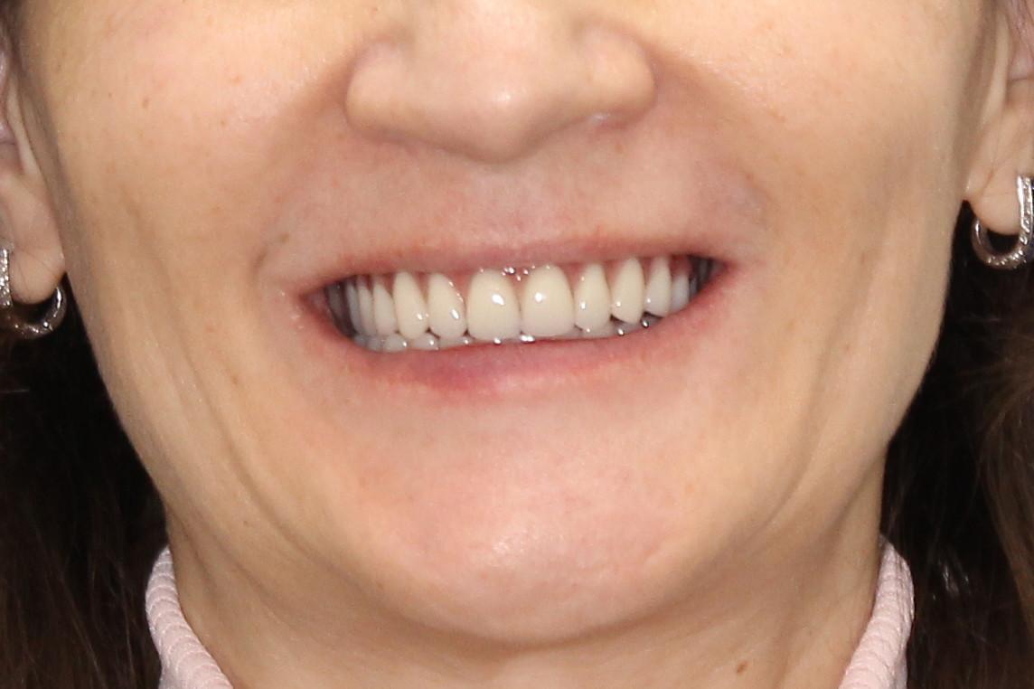 Постоянное протезирование зубов по протоколам All-on-6 и All-on-4
