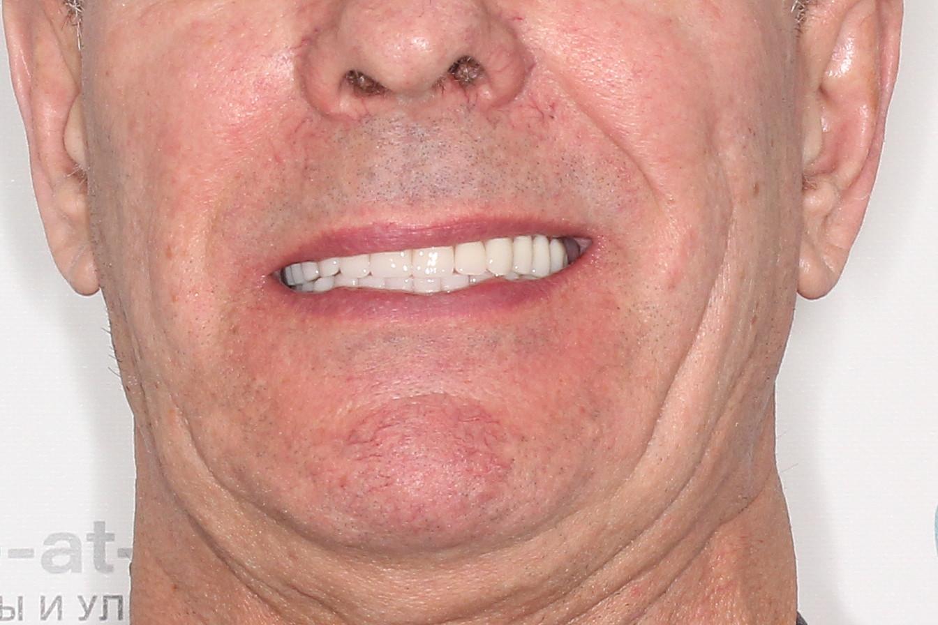 Basal Complex на обе челюсти с протезами из керамокомпозита, фото до