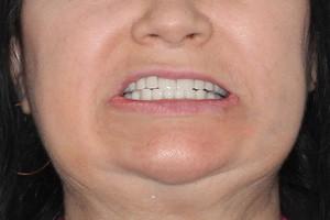 Новейшие методики помогают улыбаться, фото до