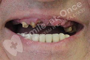 Имплантация и протезирование на верхней челюсти