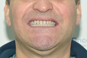 Имплантация ALL-ON-3 – Trefoil на нижней челюсти