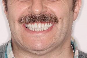 Однофазная имплантация двух челюстей