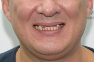 All-on-4, восстанавливаем верхнюю челюсть