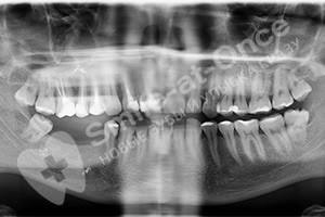 Восстановление 2х жевательных зубов