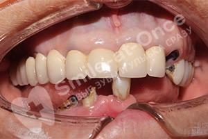 Нижняя челюсть - однофазная имплантация