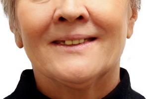 Все-на-4 с постоянным протезом на обе челюсти - до