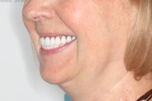 Базальная имплантация для верхней челюсти и All-on-4 для нижней