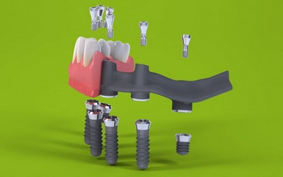 ProArch на 6 имплантах с несъемным адаптационным протезом на каркасе