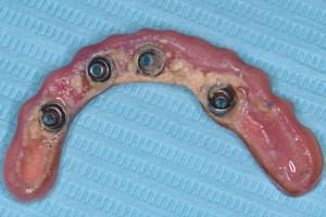 Профессиональная гигиена в рамках сервисного обслуживания после имплантации, фото до
