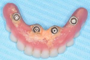 Проведение дополнительной гигиены после имплантации All-on-4, фото до